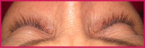 eyelash-growth-1