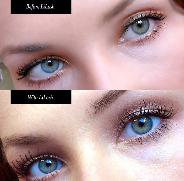 lilash-before-after__77677