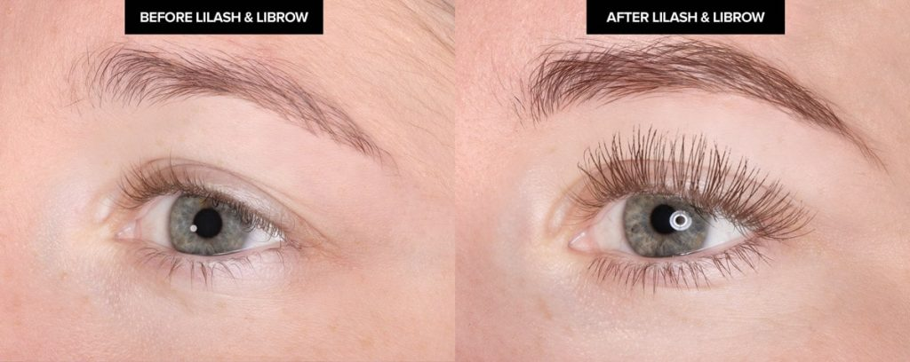 lilash-librow-before-after-marni