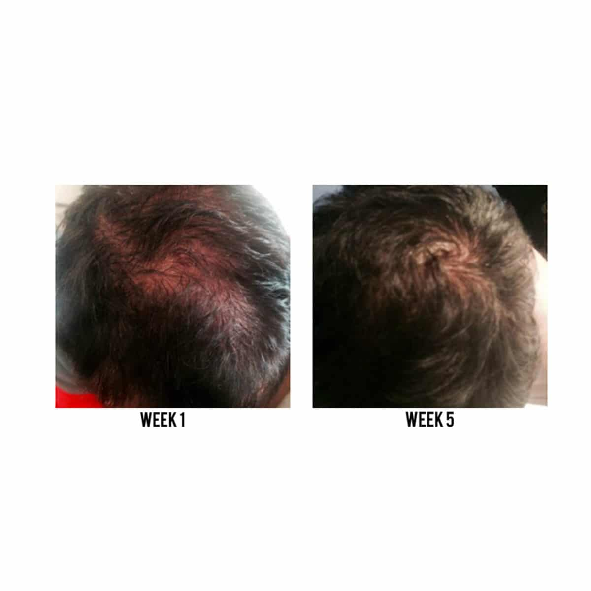 zenagen-men-before-after-1