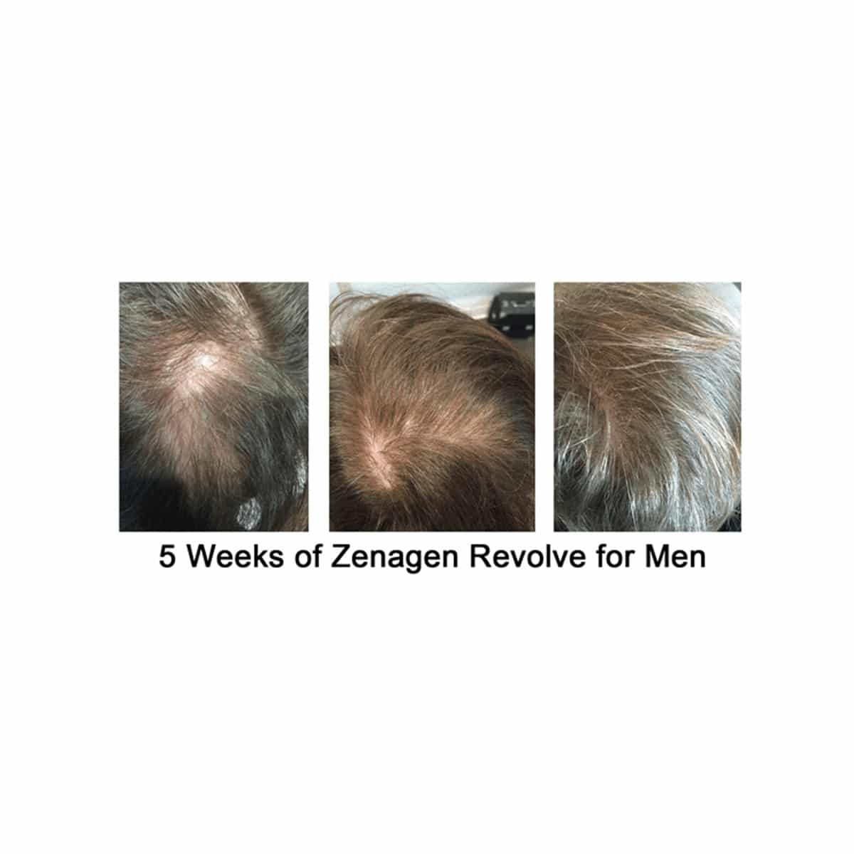 zenagen-men-before-after-4